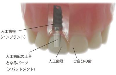 インプラント構造の図2